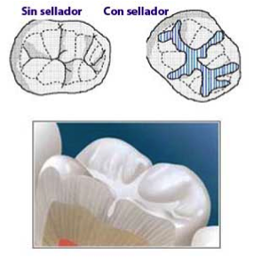sellador-dental