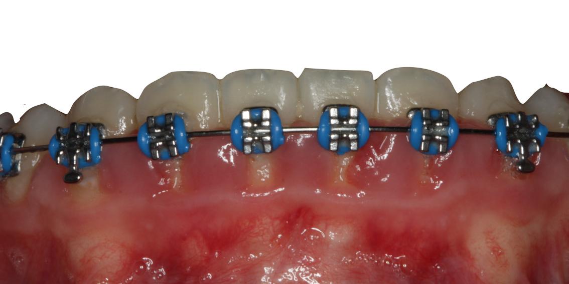 importancia-higiene-ortodoncia-carballo