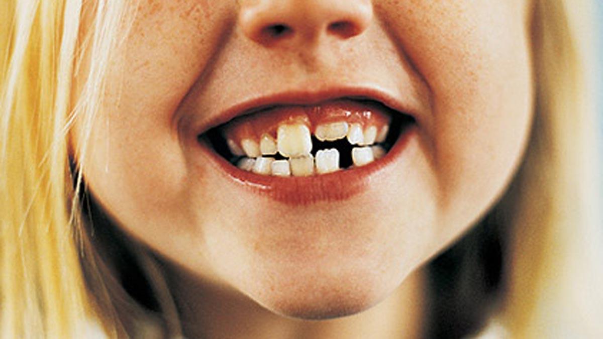 mi-hijo-rompió-un diente